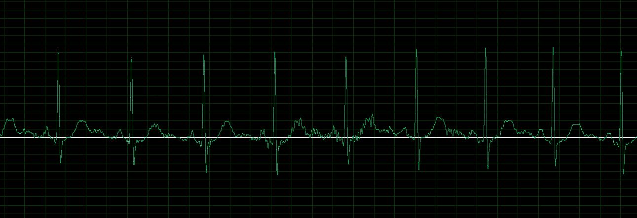 Satcom Sounds | UHF-Satcom